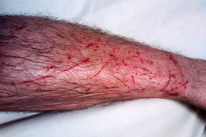 Noga rajdowca